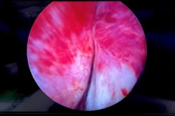 TURP transurethral resection of prostate