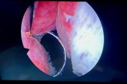 前列腺增生手術